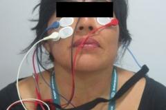 Potenciales-evocados-miogenicos-vestibulares